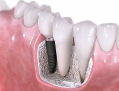 زرعات الاسنان